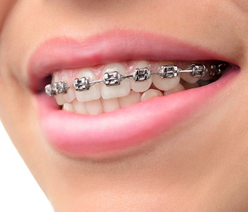 types of braces east los angeles