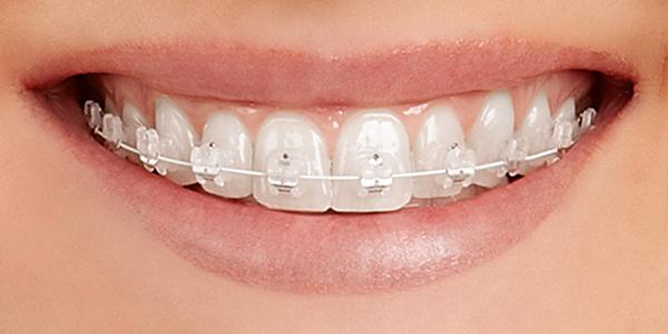types of braces east los angeles